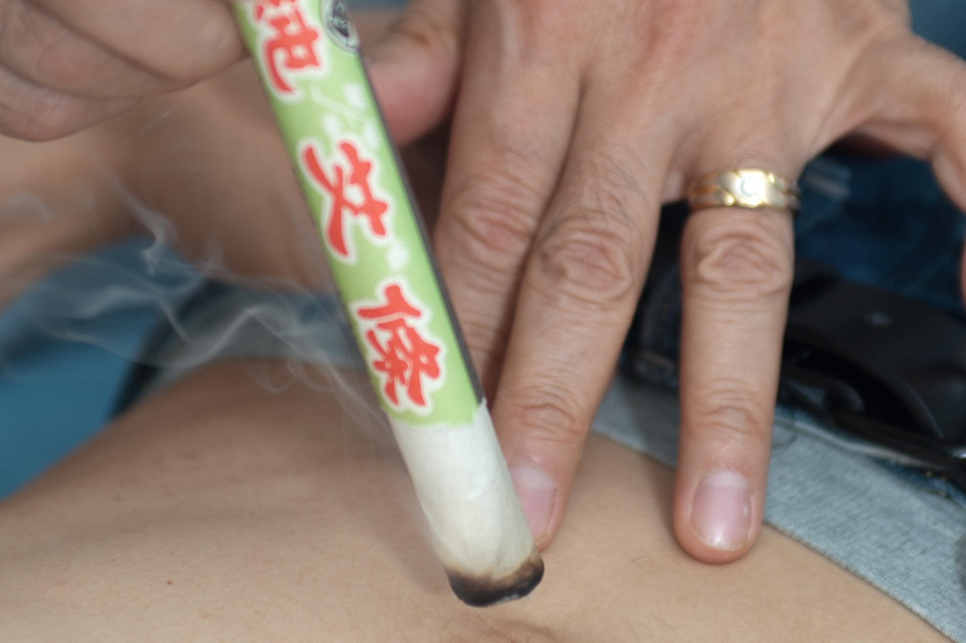 Moxibustion heat treatment